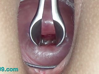 Cervix stretching wide with speculum and sperm in uterus
